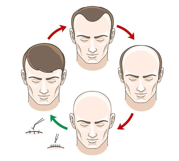 Compreender o ciclo de crescimento do cabelo