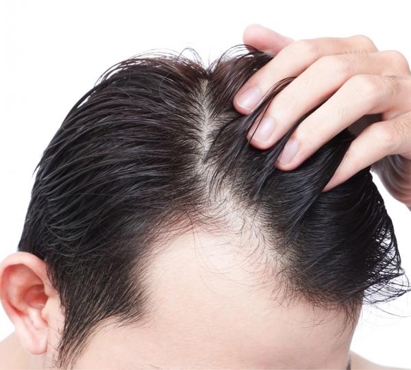 Quanto tempo dura o implante de cabelo?