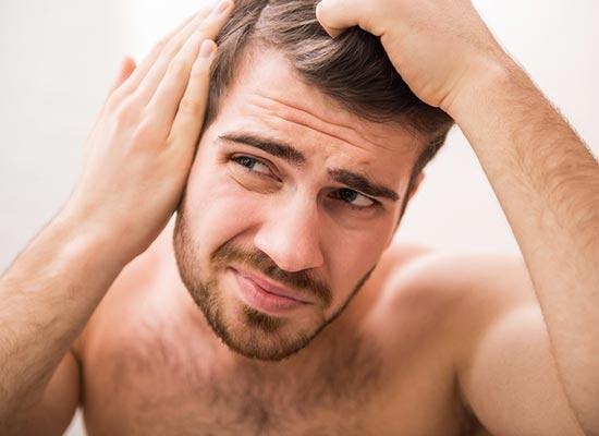 4 maneiras de saber se você está ficando careca