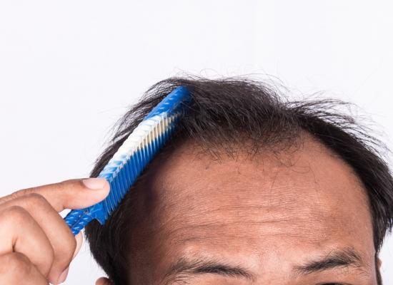 Implante capilar é definitivo?